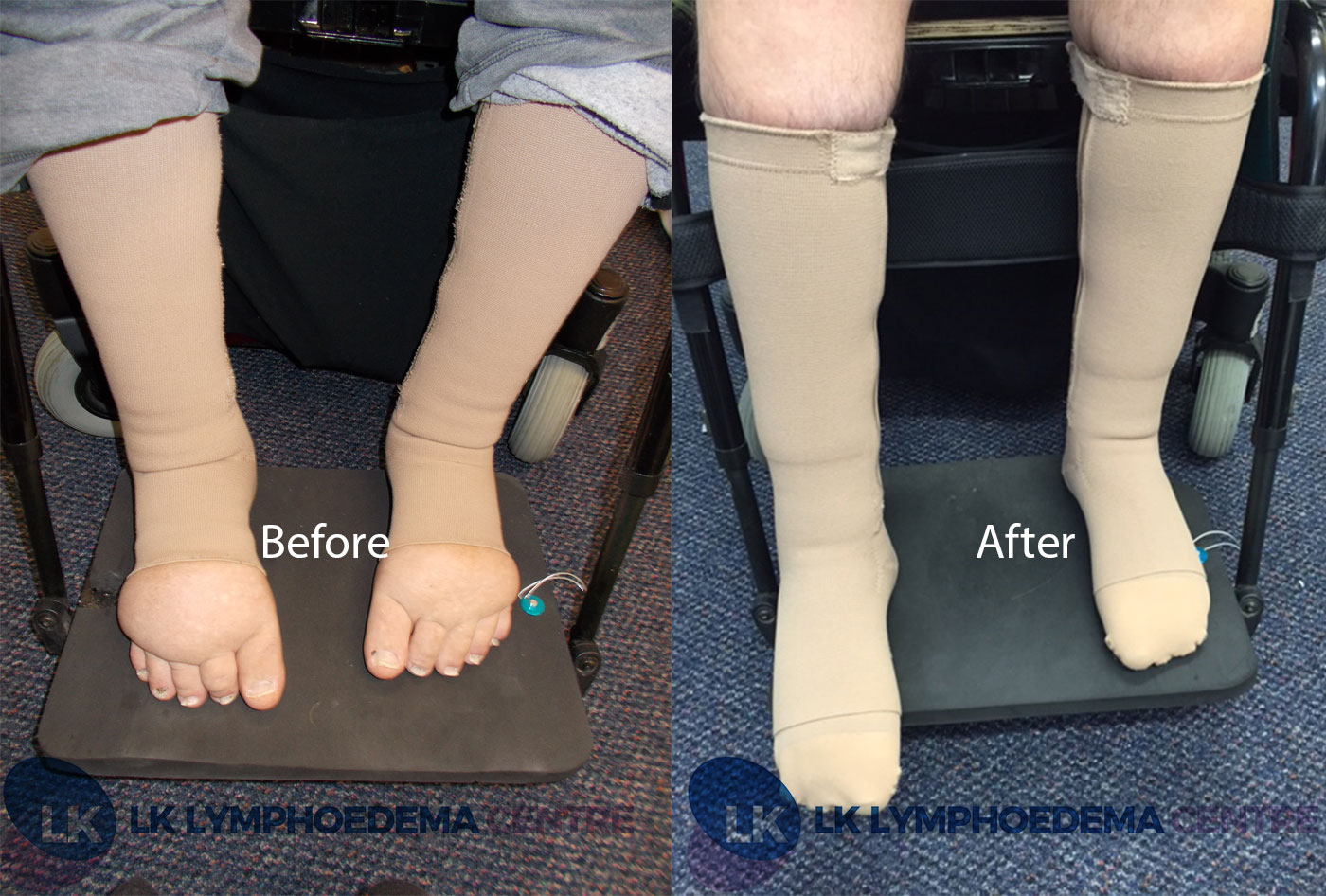 Before and after lymphoedema treatment
